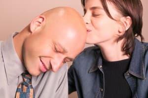 oblysenie-alopeciya