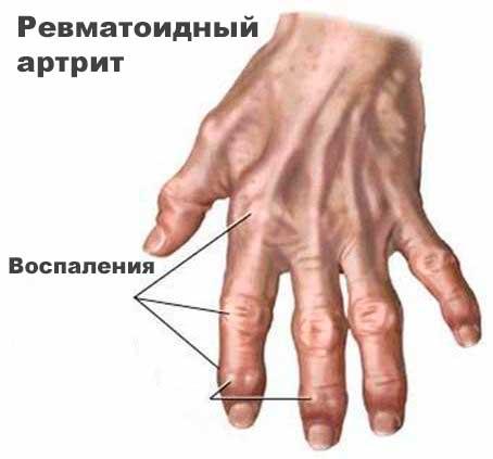 Изображение - Боль в суставах уйдет revmatoidnyj-artrit