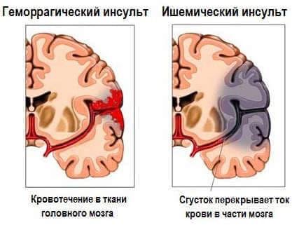 От чего происходит инсульт. Признаки, симптомы, оказание помощи