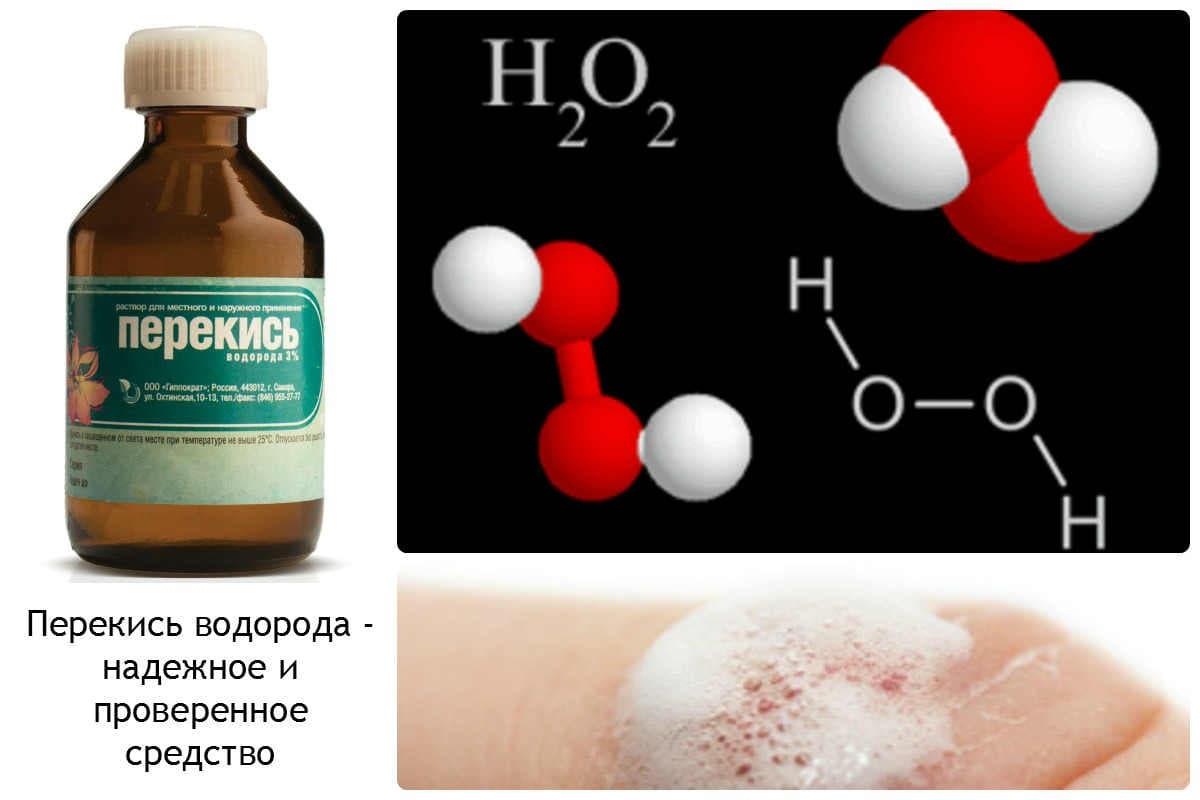 Perekis-vodoroda-nadezhnoe-i-proverennoe-sredstvo