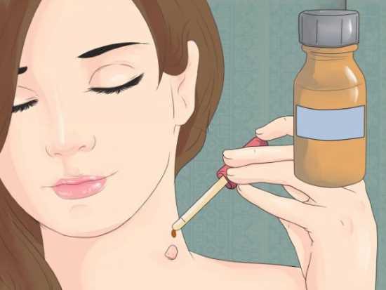 Что такое папилломы, симптомы, как лечить, чем выводить