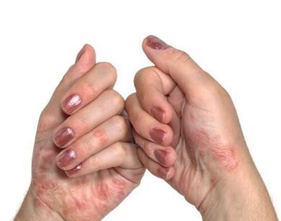 Экзема на руках, симптомы и причины заболевания