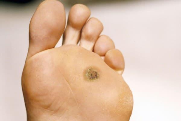 Бородавка на ноге